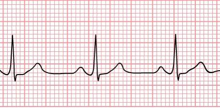 Medical Equipment ECG